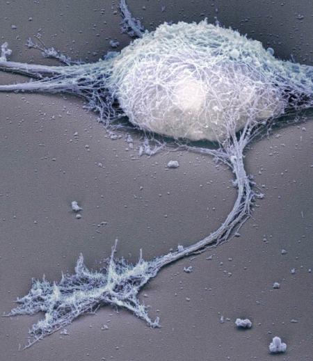 Electron microscopy of hippocampal neuron
